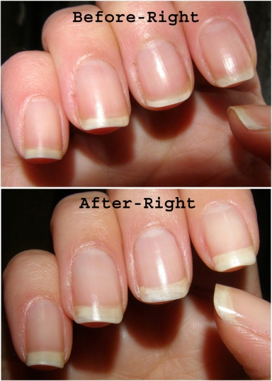 Nail Envy Before and After