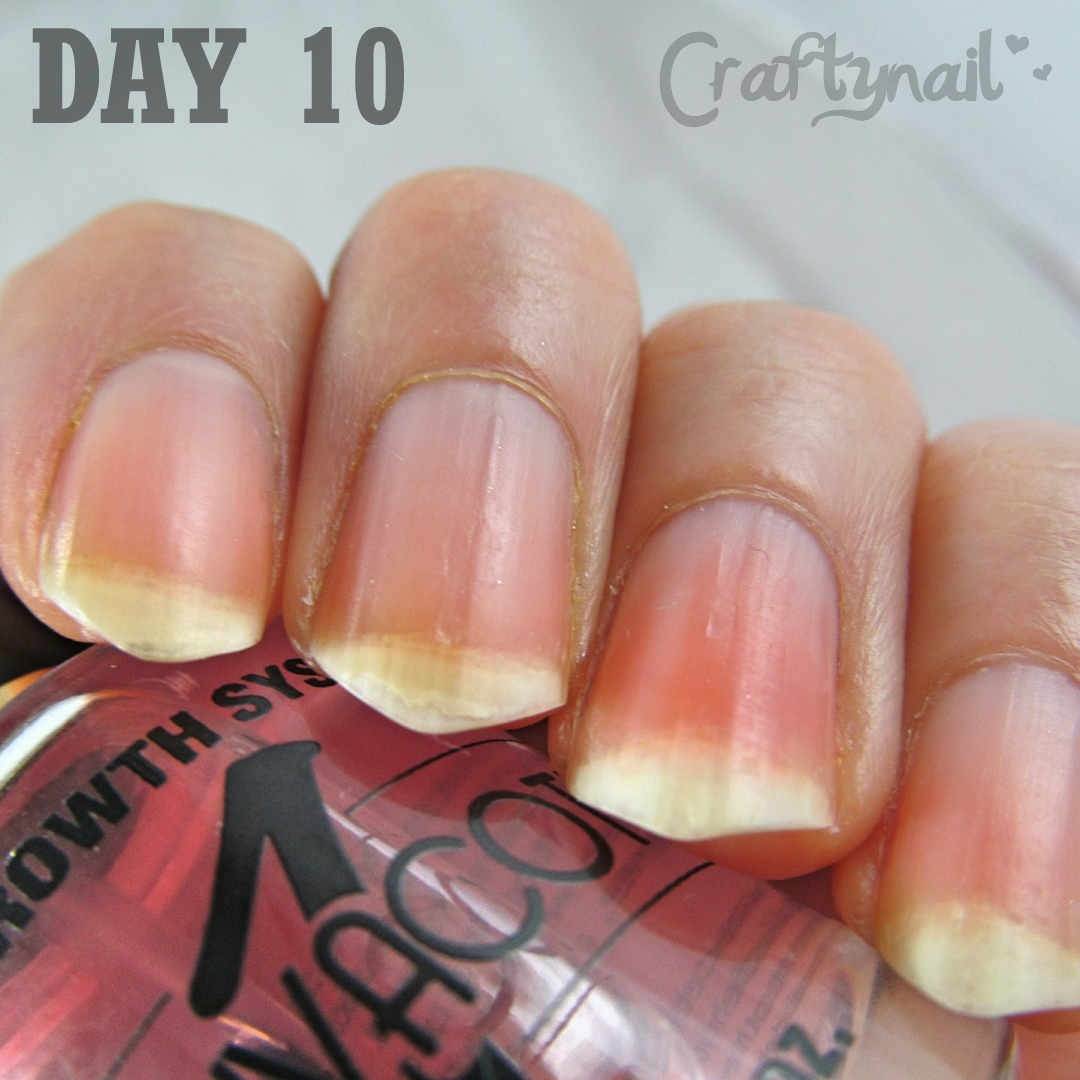 Craftynail: Duri Rejuvacote Review (before And After)