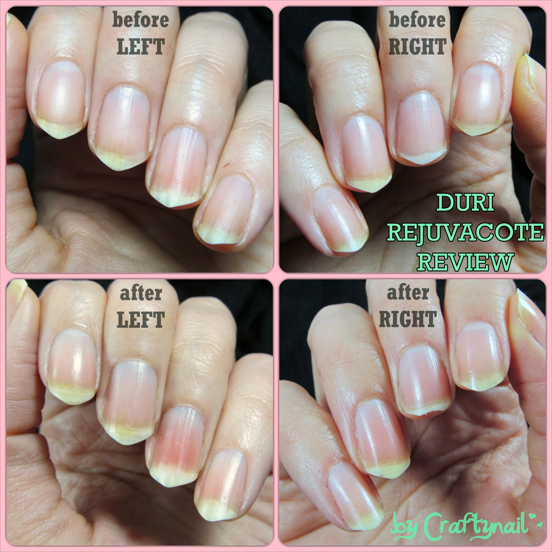 Duri Rejuvacote Review (before and after) | Craftynail